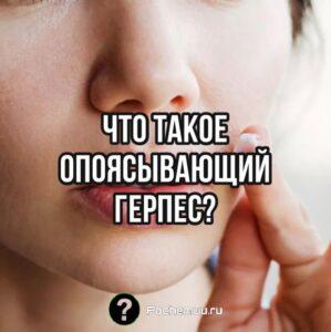 Read more about the article Что такое опоясывающий герпес (лишай). Причины и симптомы, лечение (видео)