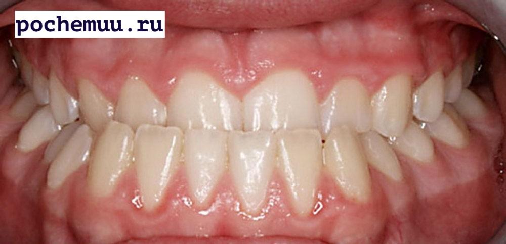 стоматологические проблемы - неправильные прикус, некачественное протезирование или лечение, отсутствие зубов либо их сверхкомплектность;