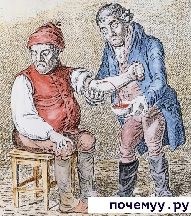 Кровопускание медицина. лечения