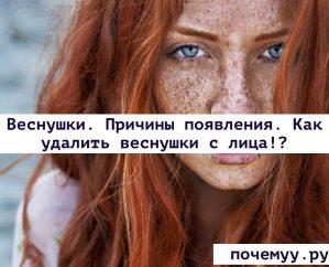 Read more about the article Веснушки. Причины появления. Как удалить веснушки с лица!?